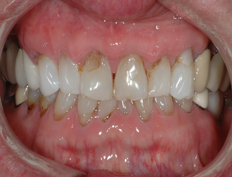 Upper Porcelain Veneers