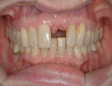 Veneers and Implant Crown